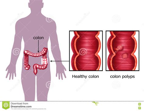 diagram of colon cancer diverticulitis illustrations vector stock