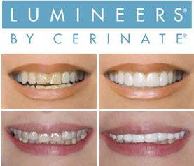 illuminate  smile  lumineers   yeovil dental