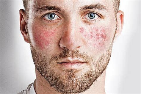 acne rosacea e alimentazione rosacea cos 232 cause e sintomi forumsalute it