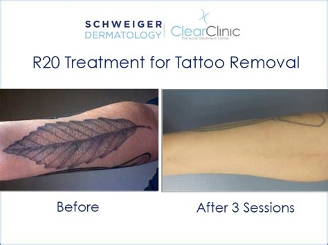 tattoo removal queens nyc tattoo removal pdf