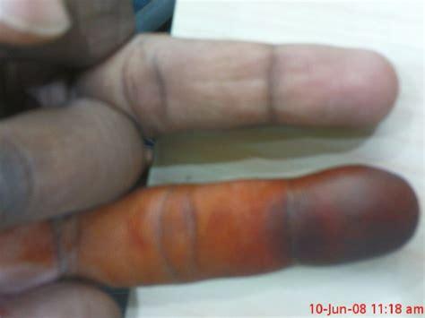 s swollen nail infection swollen finger