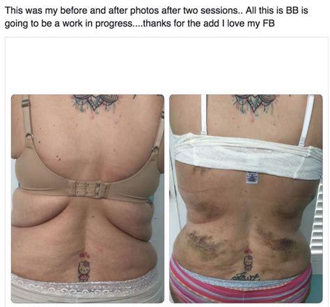fascia blasting for the tummy 1000 ideas about fascia lata on anatomy