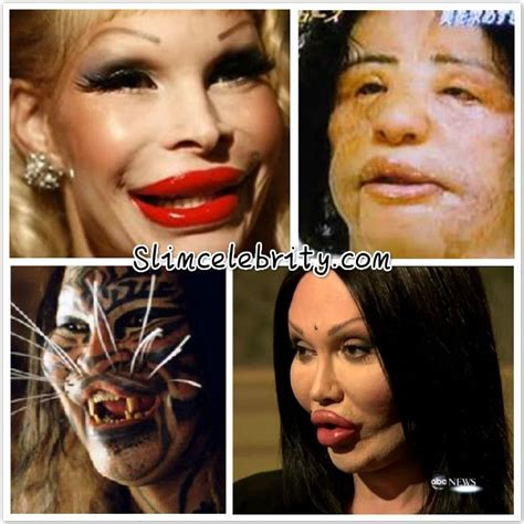 375 best images about celebrity plastic surgery on pinterest 89 best ideas about celebrity plastic surgery before and
