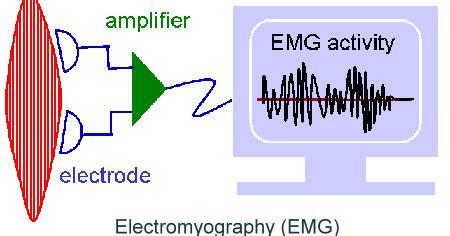 Alat Kesehatan Emg Tentang Elektromyograph Emg Sinyal Otot My Medicare