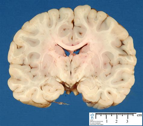 Brain Frontal Section 2 Humpath Com Human Pathology