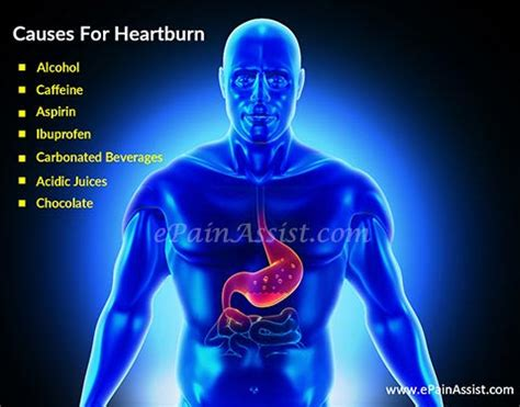 Heartburn Pictures
