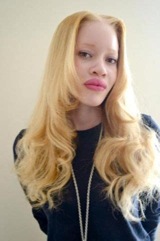Diandra Expand diandra forrest was born in the bronx new york city on