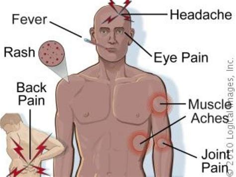 signs of fever symptoms west nile virus