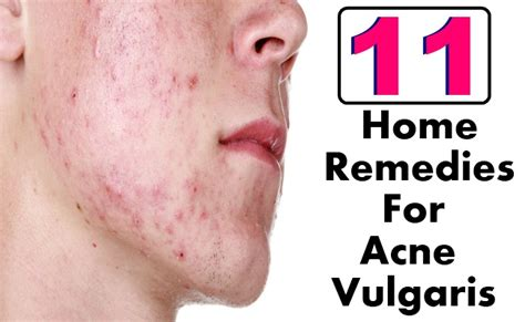 Best At Home Acne Treatment by 11 Home Remedies For Acne Vulgaris Search Home Remedy