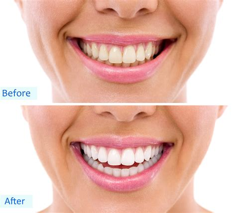 led home teeth whitening kit skin care clinic belvoir