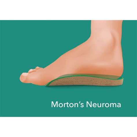 morton s neuroma shoes morton s neuroma