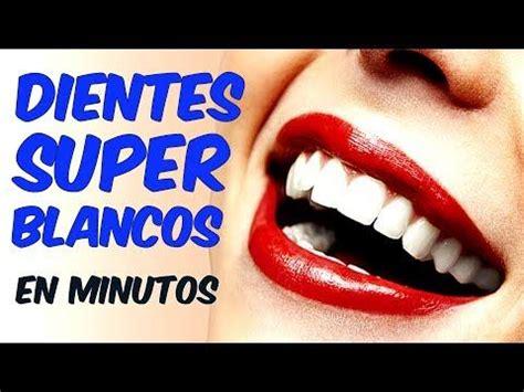 blanquear dientes en casa m 225 s de 20 ideas incre 237 bles sobre blanqueamiento de dientes
