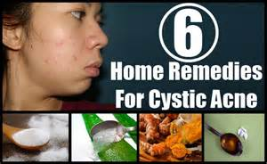 home remedies for cystic acne home remedies treatments cure for cystic acne