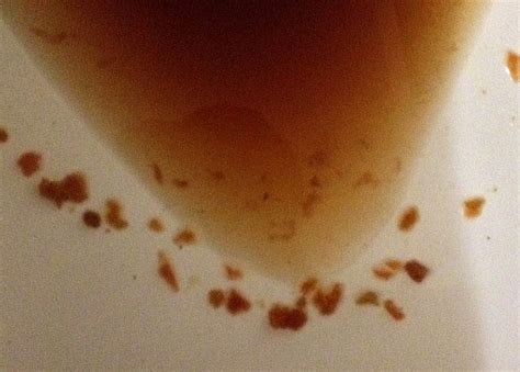 Undigested Corn In Stool by Help Me Identify Parasites From An At