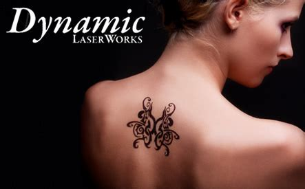 up to 90 off laser tattoo removal sessions at dynamic