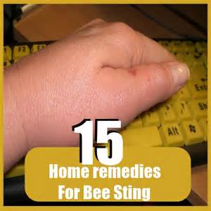 bee sting relief home remedies 15 home remedies for bee sting diy find home remedies