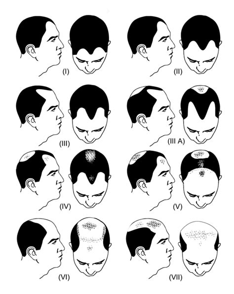 male pattern hair loss scale norwood scale procerin for male hair loss