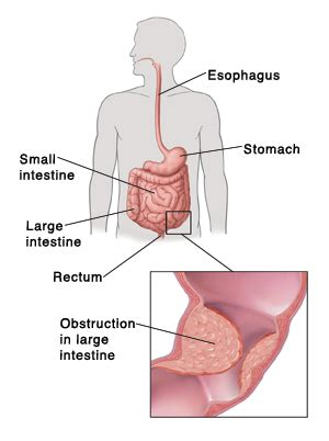 large bowel obstruction articles mount nittany health