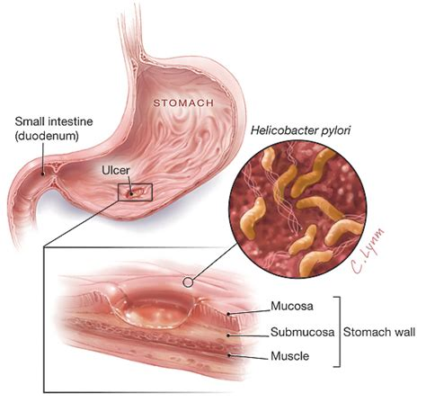 Can H Pylori Cause Blood In Stool by Helicobacter Pylori Gastroenterology Jama The Jama