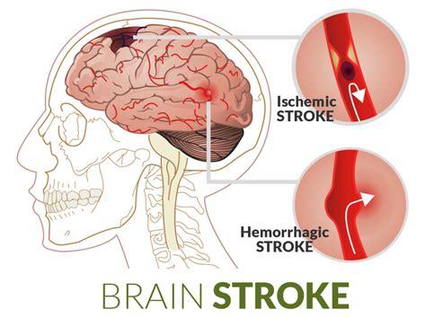 a stroke stroke misdiagnosis
