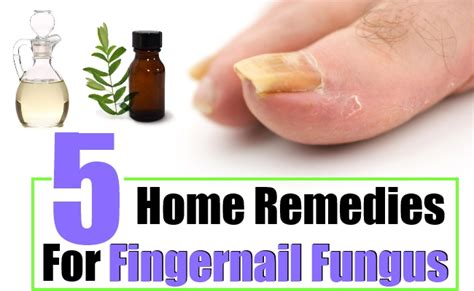 fingernail fungus home remedies treatments and
