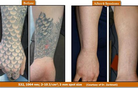 tattoo removal singapore blog removing tattoos just got faster clarksvillenow com