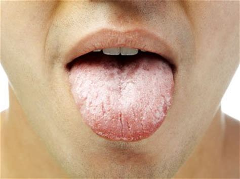 what color should my tongue be 9 secrets your tongue reveals about your health reader s