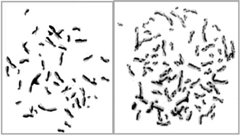 nucleolar pattern definition biology 442 human genetics chromosome analysis