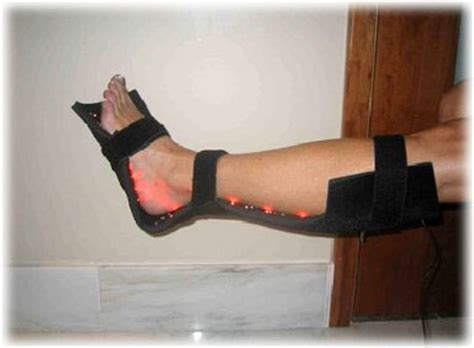 light therapy for neuropathy naples fort myers shoe store solutions estero now