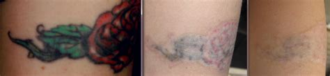 tattoo removal laser treatment chronicles of a tattoo removal