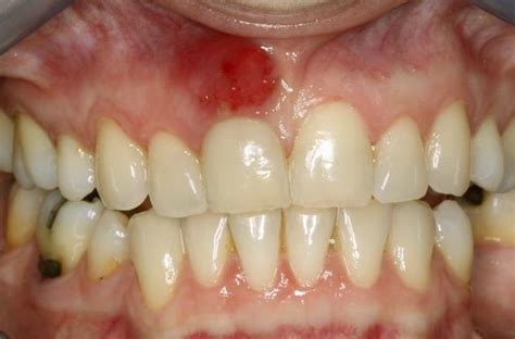 growth on s gum lump on gums pictures causes painless lump