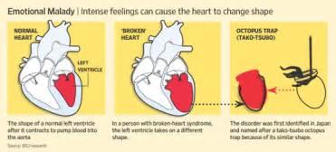 Large Japanese Vase Diagnosis Broken Heart Syndrome Wsj