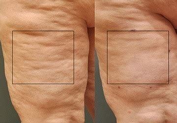 Cellulite 101 Treatment by 101 Proven Tips To Lose Weight Fast Safely Builtlean