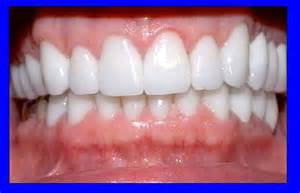 what color should your gums be healthy gums common dental questions