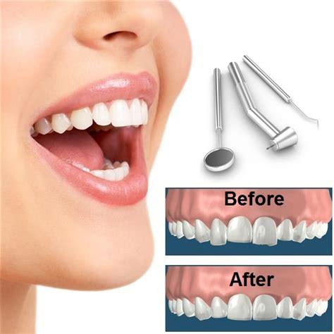 tooth reshaping  dental contouring dubai