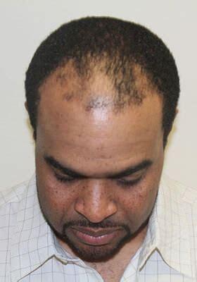 hair transplant jeddah hair transplants riyadh the hair transplant center hair