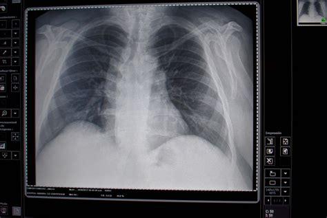 el ultrasonido puede detectar la enfermedad pulmonar