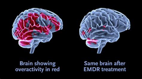 emdr in family systems an integrated approach to healing books emdr eye movement desensitization and reprocessing