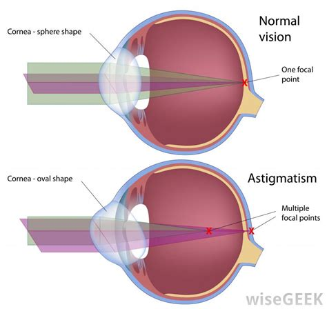Viseaon For All Type Is Laser Eye Surgery For All Types Of Vision Problems
