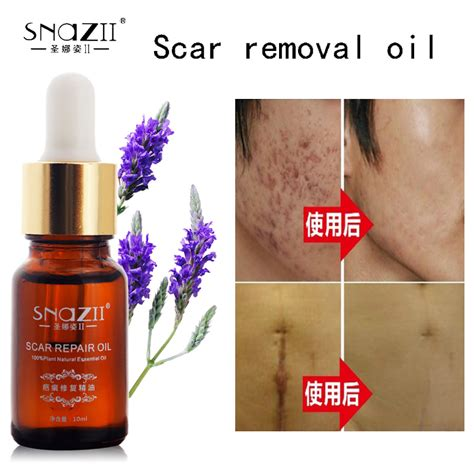 aliexpress com buy scar removal lavender essential oil snazii face care acne scar removal eccential oil acne