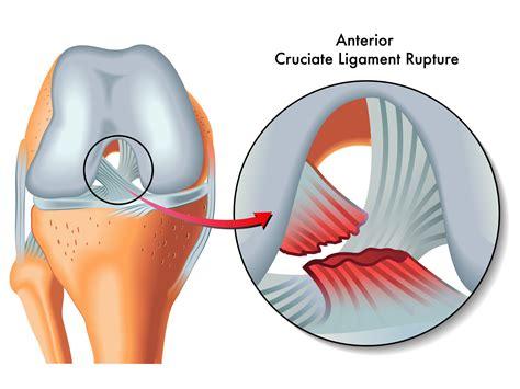 anterior cruciate ligament acl the anterior cruciate ligament acl physio fitness
