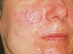 acn 233 rosac 233 e ecole et formations en aromatherapie