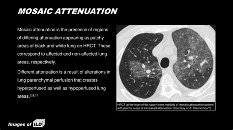 mosaic pattern of lung attenuation on chest ct in patients high resolution computed tomography hrct ppt download