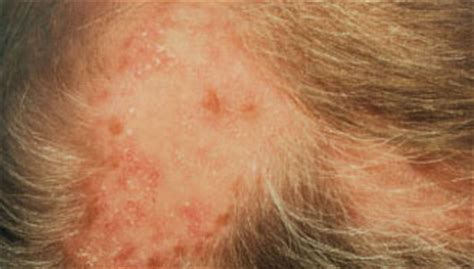 pattern of hair loss in lupus discoid lupus hair loss pictures to pin on pinterest