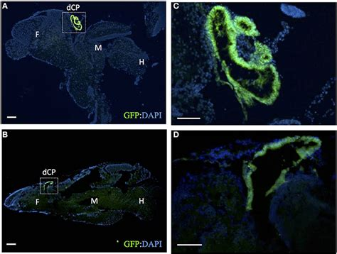Gfp Kaos Cp 72 frontiers functional and genetic analysis of choroid plexus development in zebrafish