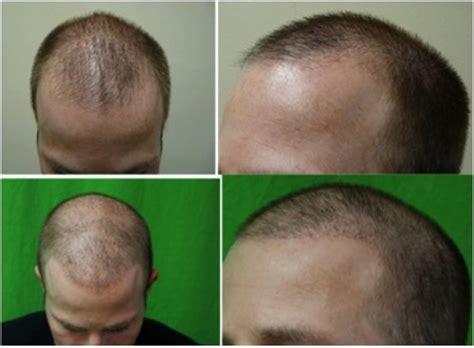 temple hair transplantation temple hair restoration dermhair clinic los angeles 1