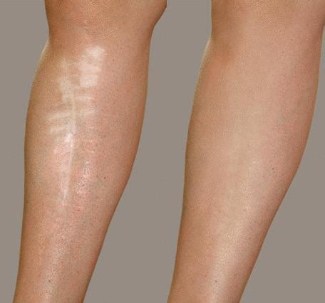 before and after leg scar