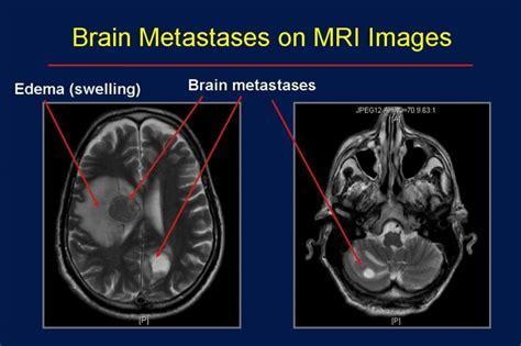 melanoma brain metastasis mri brain tumor clinic brain metastases