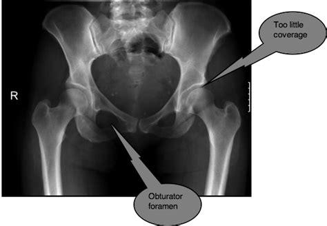 hip dysplasia femoro acetabular impingement causes severe stiffness in hips