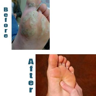 Planters Wart Removal On Foot by How Do You If Plantar Wart Treatment Is Working Hpv